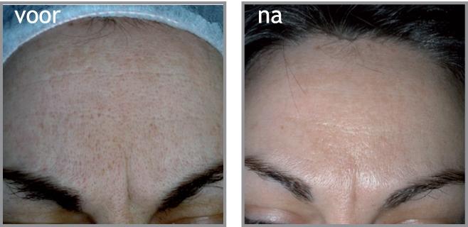 littekenbehandeling acne